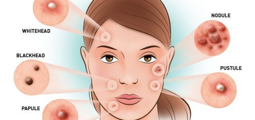 home remedies acne 1